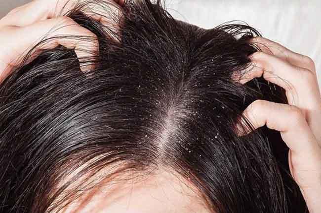 Dầu gội thiên nhiên không gây ra kích ứng cho da đầu.